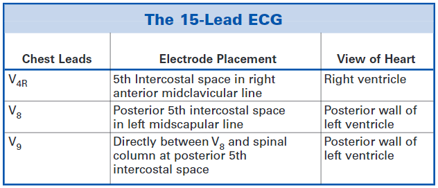 EKG 15 Leads