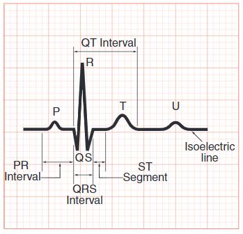 Gelombang EKG PQRST