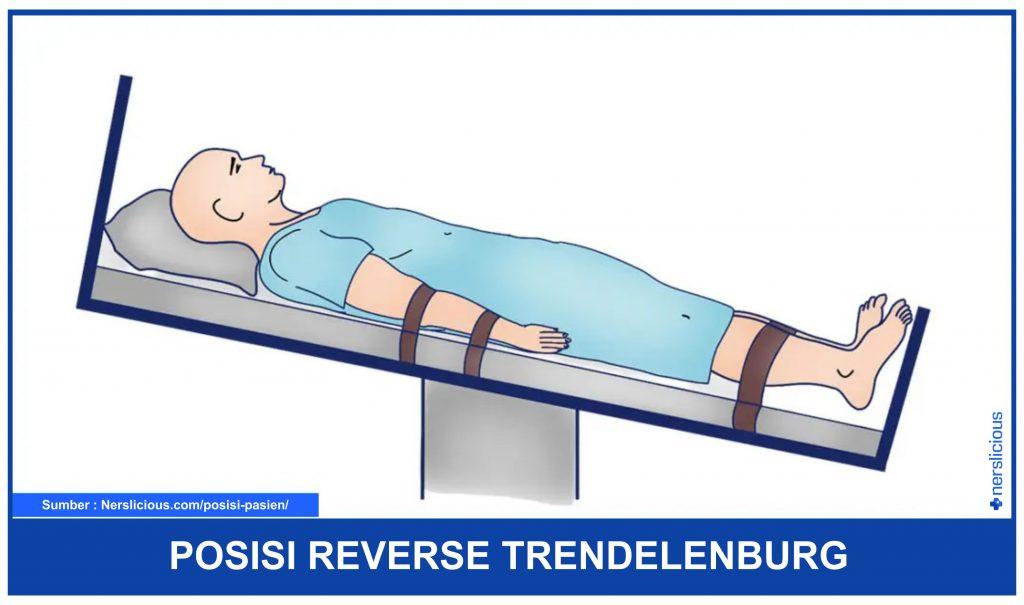 Posisi Reverse Trendelenburg