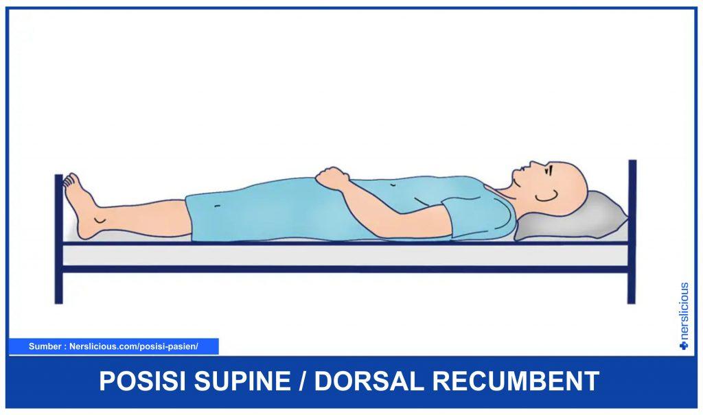Posisi Supine atau Dorsal Recumbent
