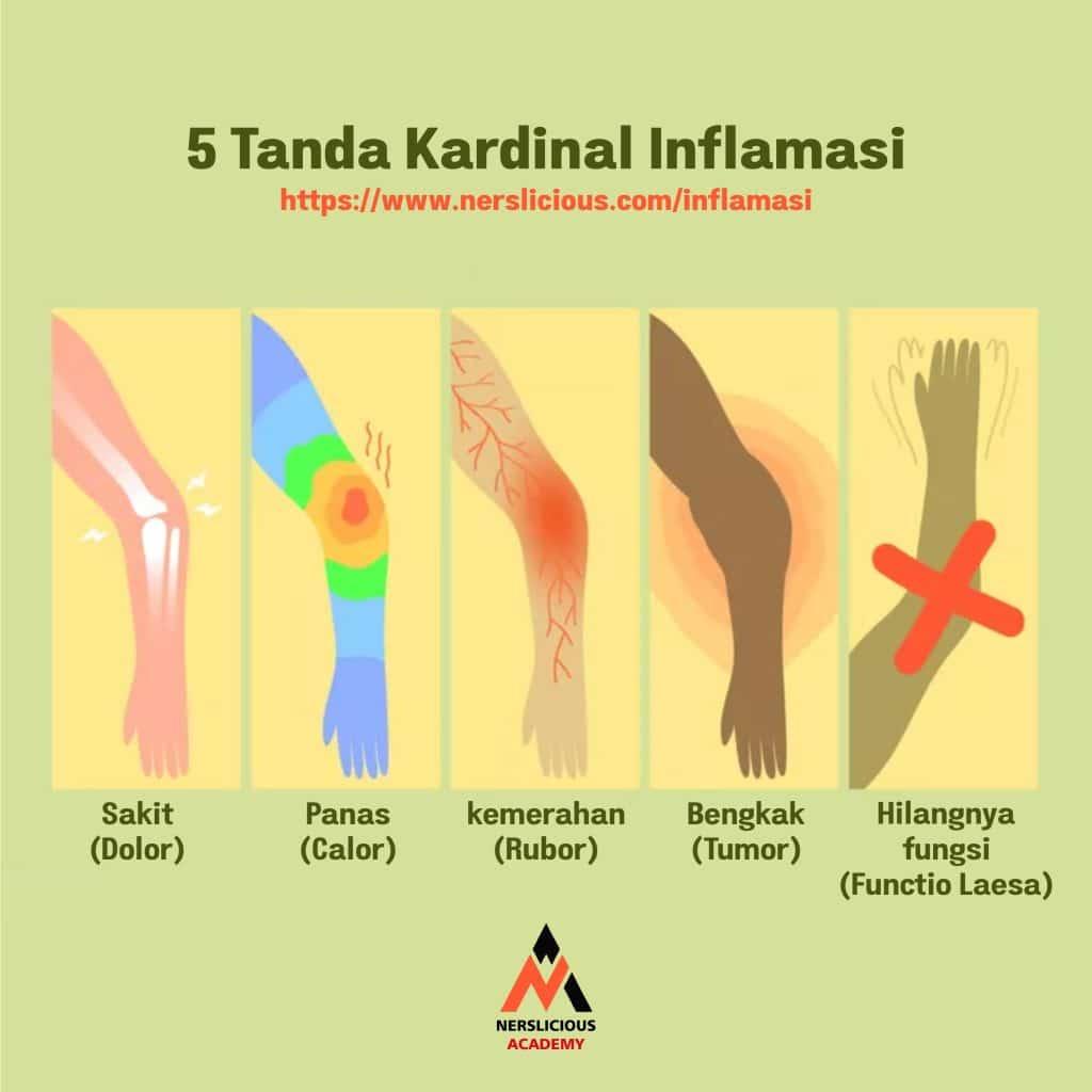5 Tanda Inflamasi